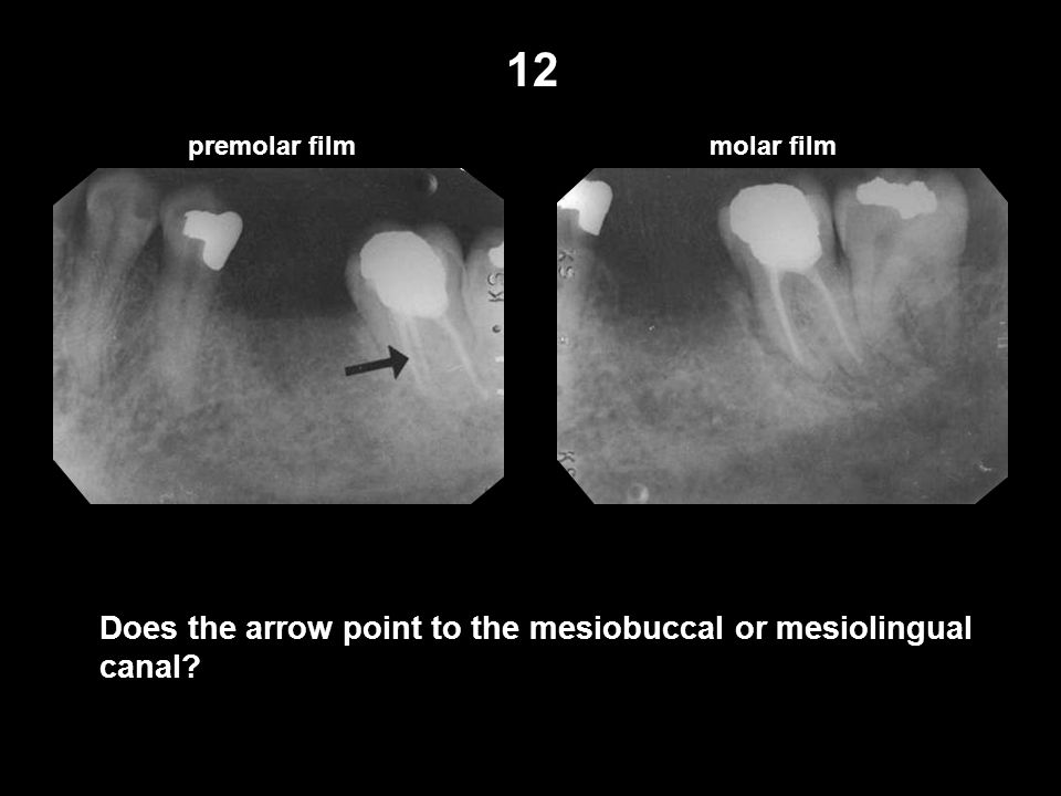 12 Does the arrow point to the mesiobuccal or mesiolingual canal