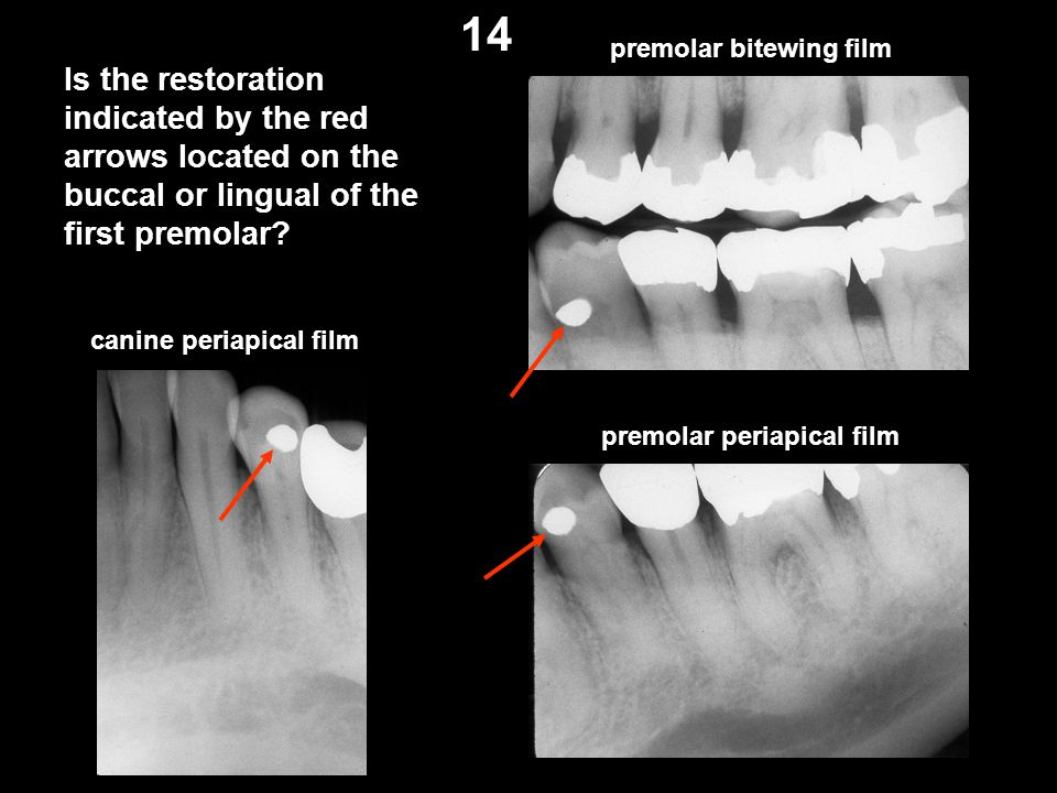 14 premolar bitewing film. Is the restoration indicated by the red arrows located on the buccal or lingual of the first premolar