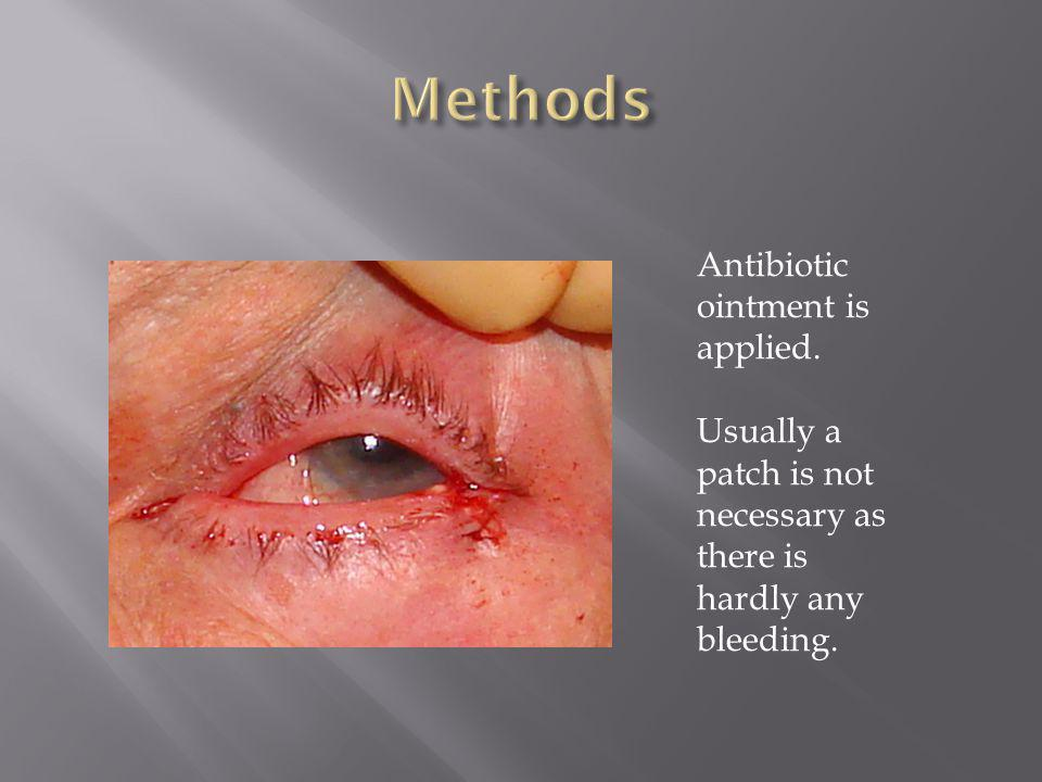 Methods Antibiotic ointment is applied.