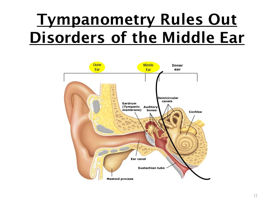 Tympanometry Rules Out Disorders of the Middle Ear