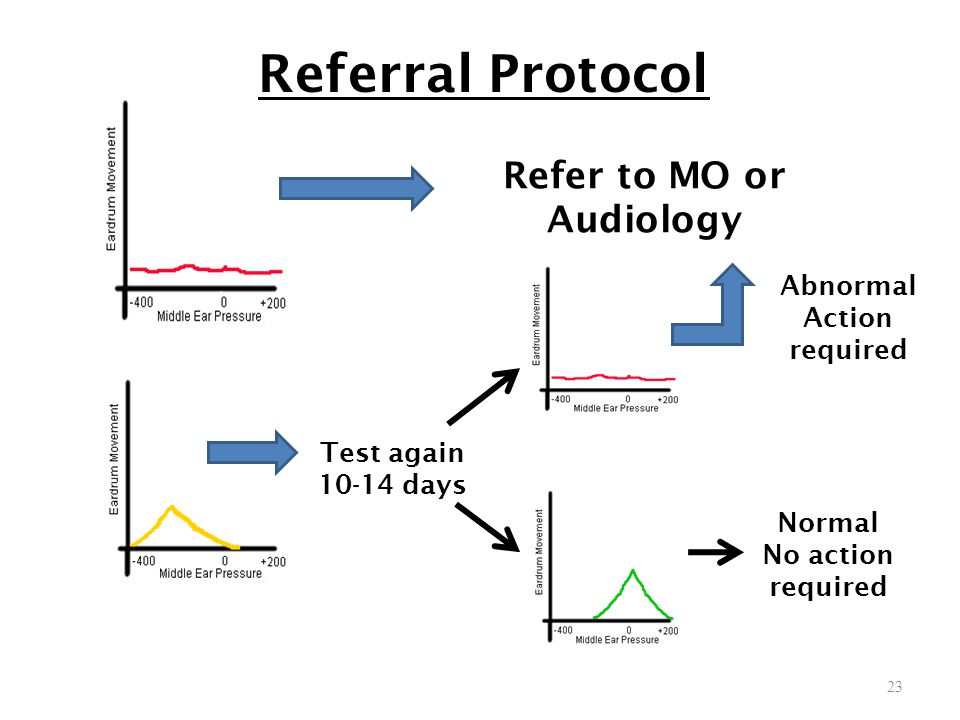 Refer to MO or Audiology