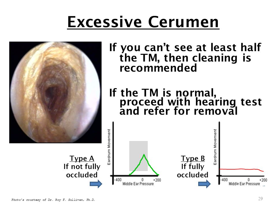 Excessive Cerumen If you can't see at least half the TM, then cleaning is recommended.