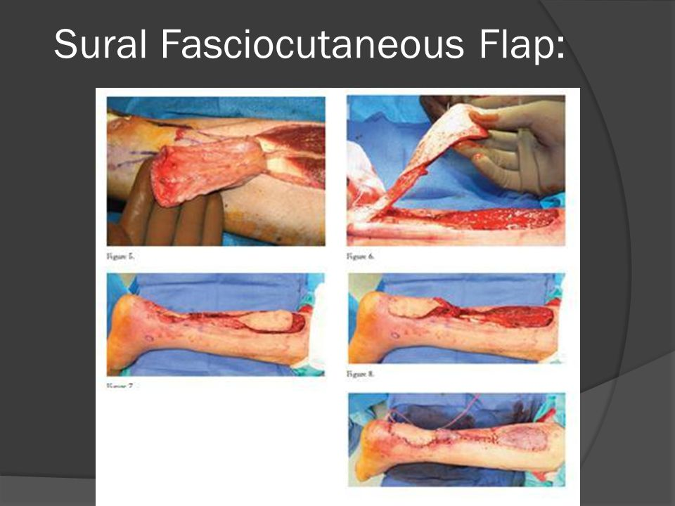 Plastic Surgery Techniques in Podiatry - ppt video online download