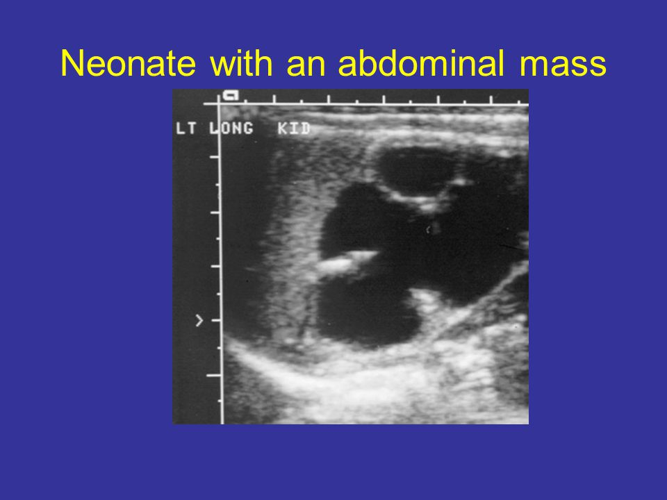 Neonate with an abdominal mass