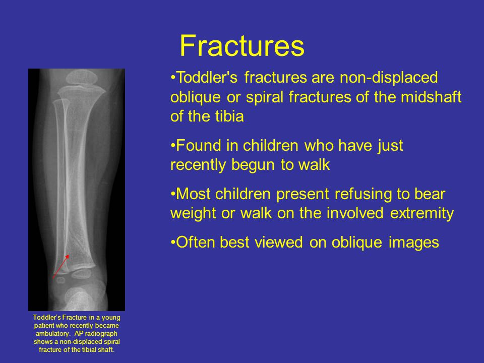 Fractures Toddler s fractures are non-displaced oblique or spiral fractures of the midshaft of the tibia.