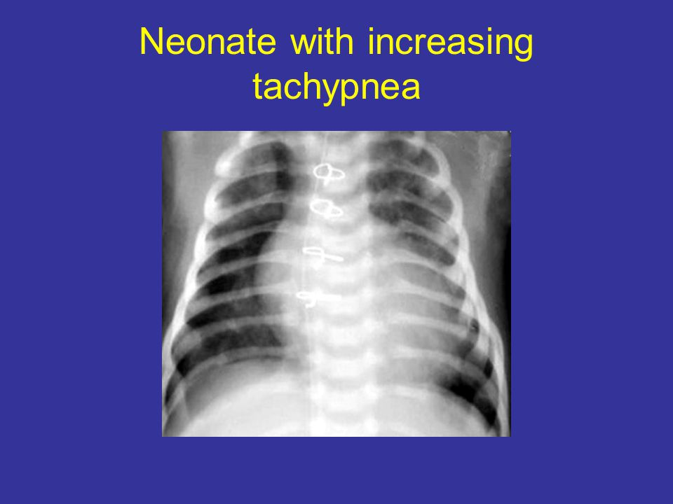 Neonate with increasing tachypnea