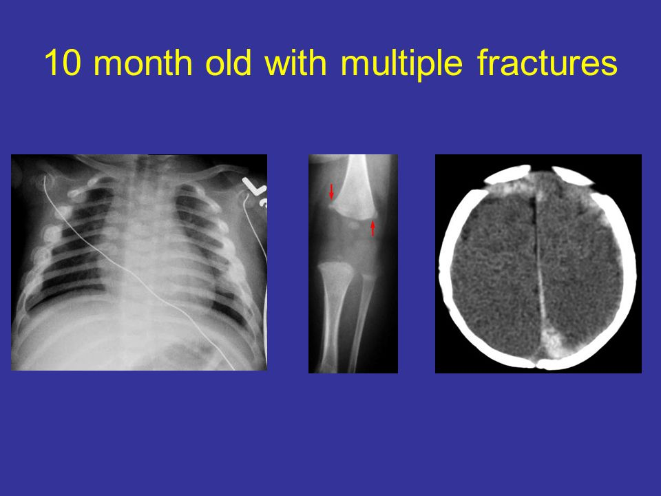 10 month old with multiple fractures