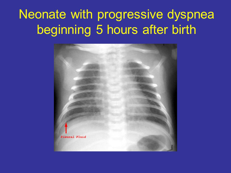 Neonate with progressive dyspnea beginning 5 hours after birth
