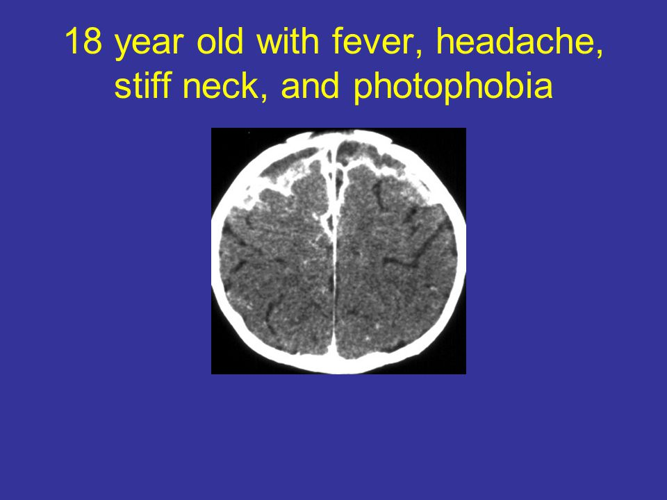 18 year old with fever, headache, stiff neck, and photophobia