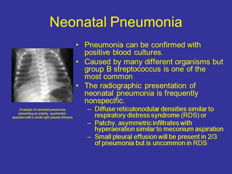 Neonatal Pneumonia Pneumonia can be confirmed with positive blood cultures.
