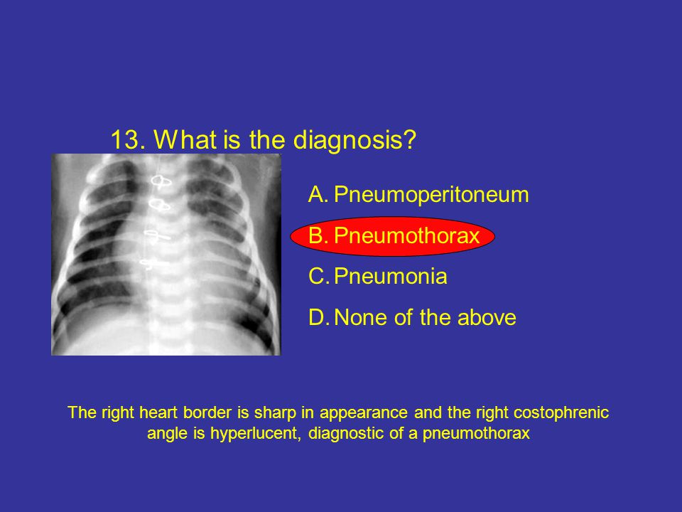13. What is the diagnosis Pneumoperitoneum Pneumothorax Pneumonia