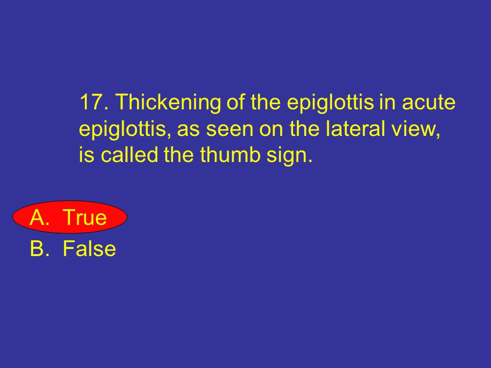 17. Thickening of the epiglottis in acute