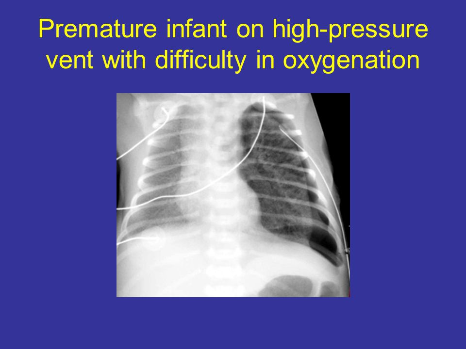 Premature infant on high-pressure vent with difficulty in oxygenation