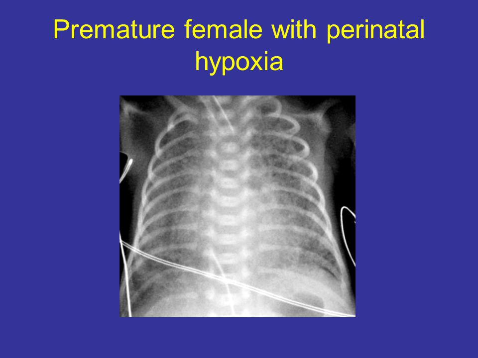 Premature female with perinatal hypoxia