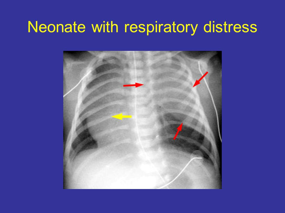 Neonate with respiratory distress