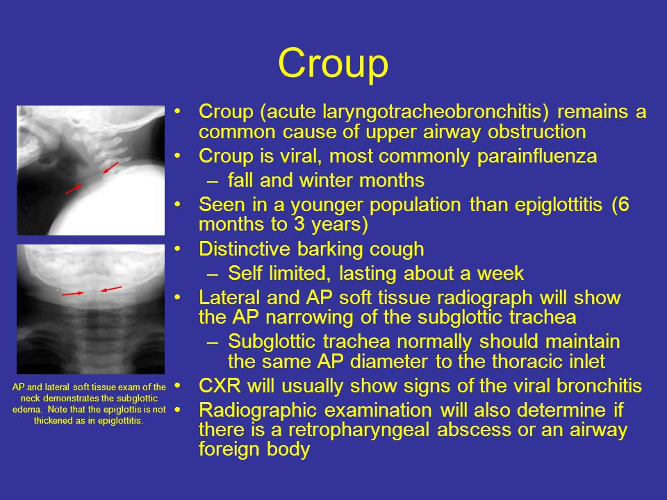 Croup Croup (acute laryngotracheobronchitis) remains a common cause of upper airway obstruction. Croup is viral, most commonly parainfluenza.
