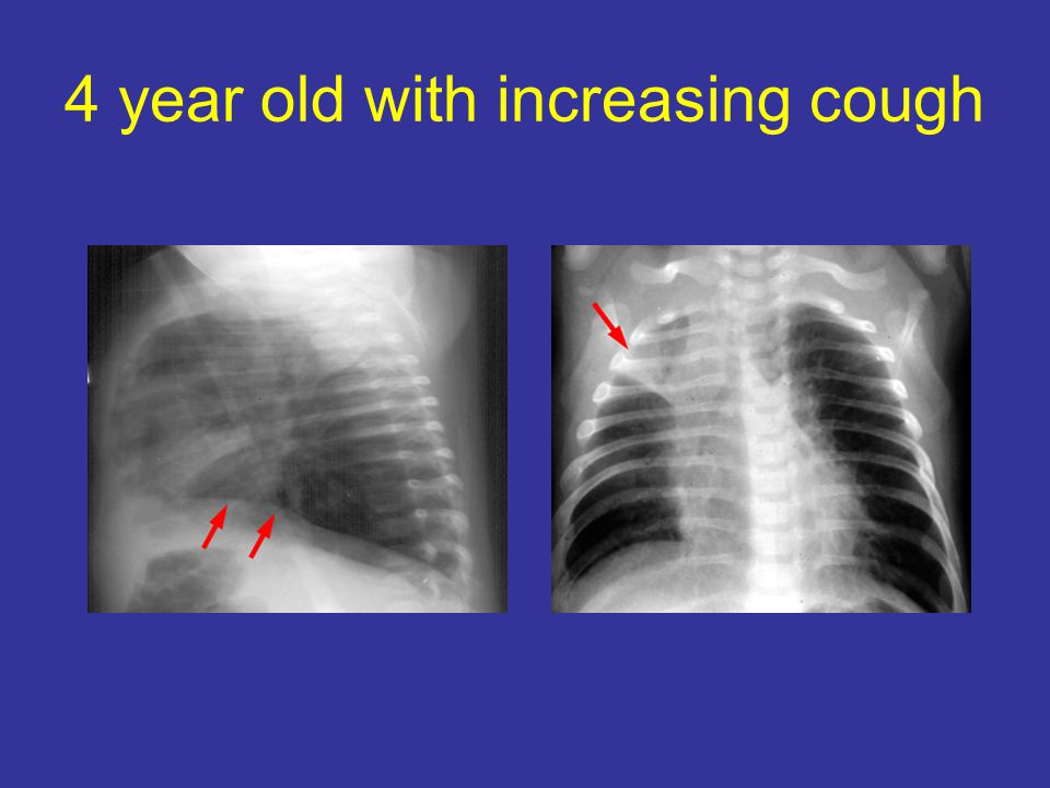 4 year old with increasing cough
