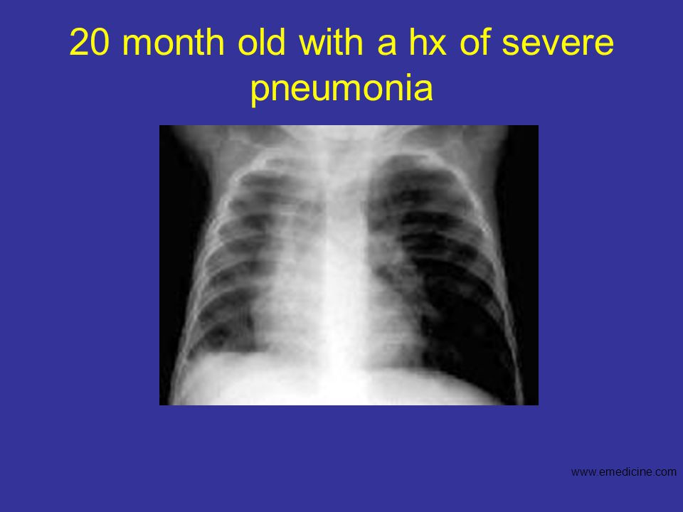 20 month old with a hx of severe pneumonia