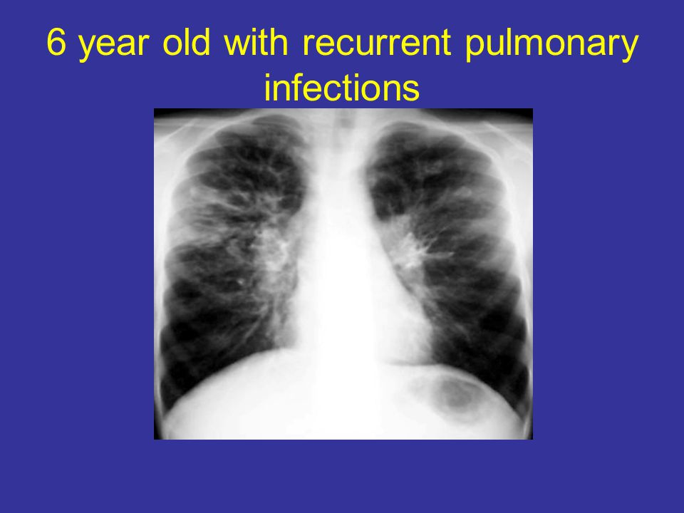 6 year old with recurrent pulmonary infections