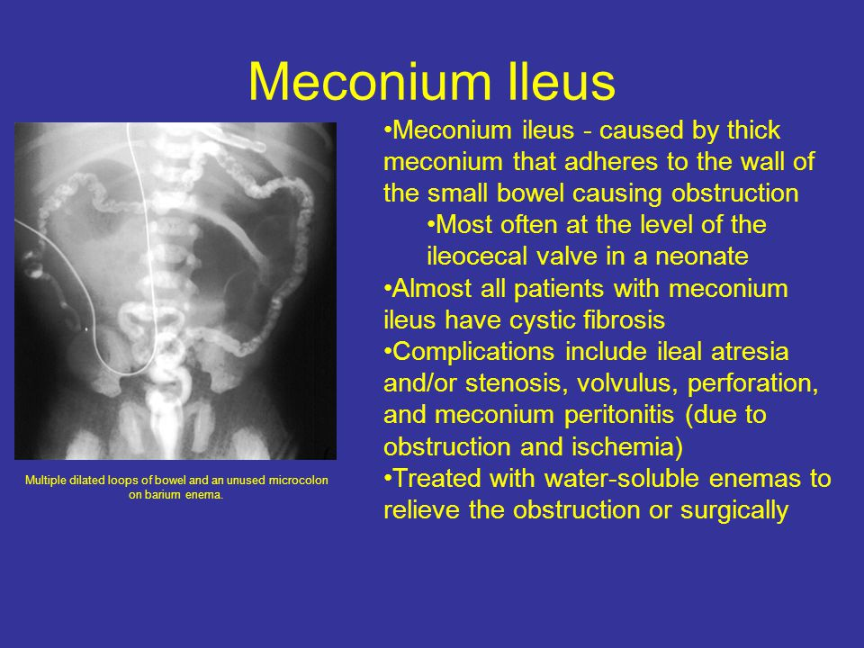 Meconium Ileus Meconium ileus - caused by thick meconium that adheres to the wall of the small bowel causing obstruction.