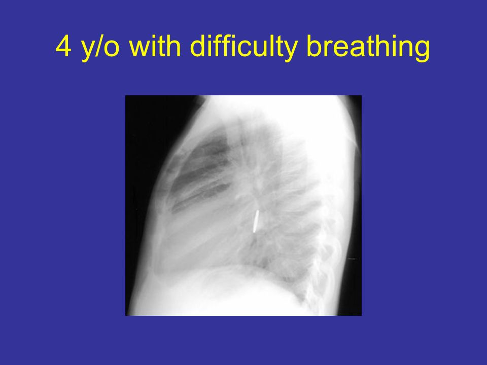 4 y/o with difficulty breathing