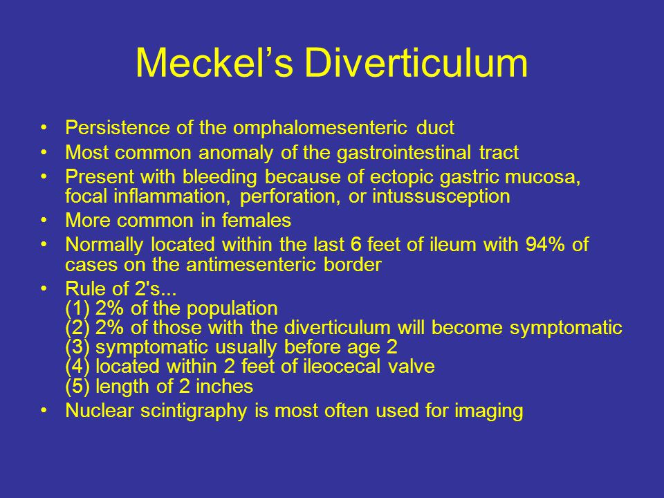 Meckel's Diverticulum