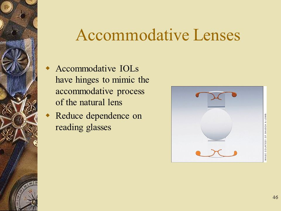 Accommodative Lenses Accommodative IOLs have hinges to mimic the accommodative process of the natural lens.