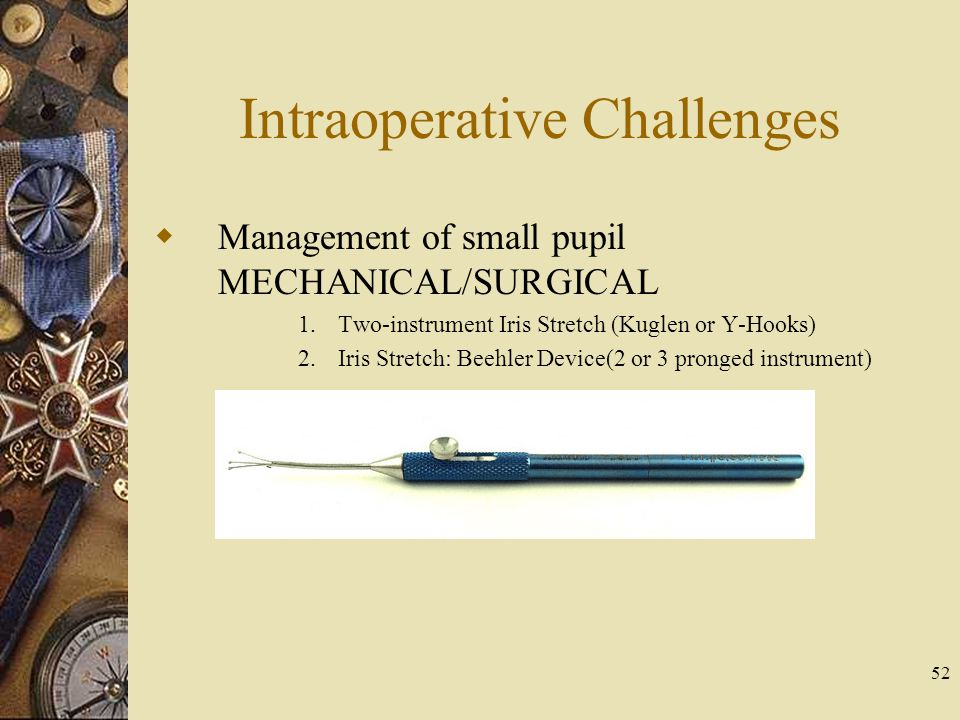 Intraoperative Challenges