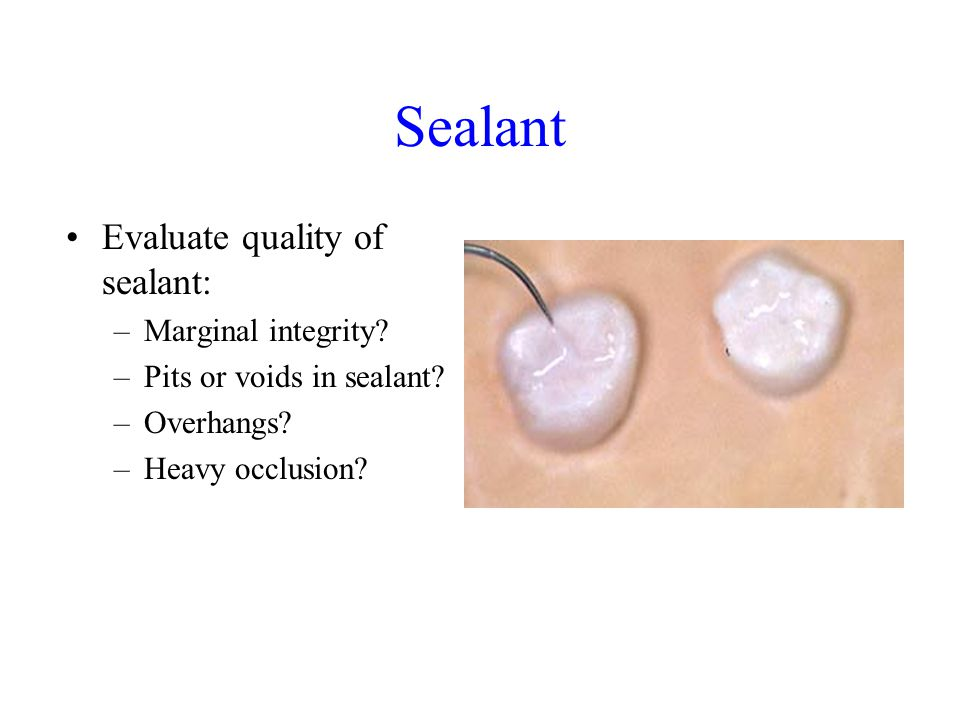 Sealant Evaluate quality of sealant: Marginal integrity