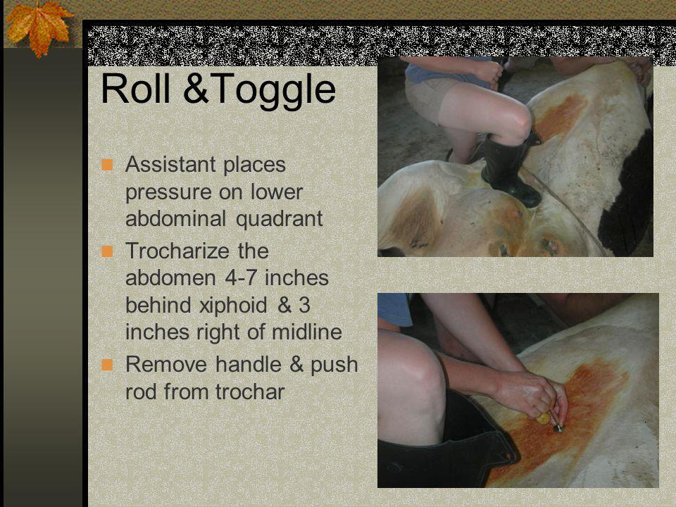 Roll &Toggle Assistant places pressure on lower abdominal quadrant