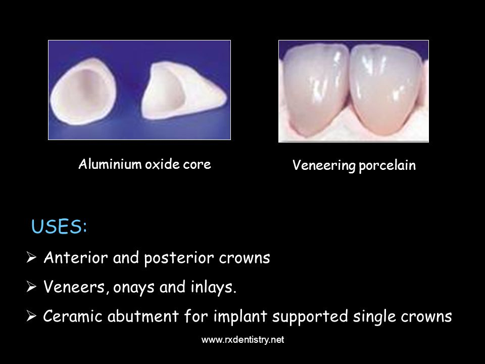 USES: Anterior and posterior crowns Veneers, onays and inlays.