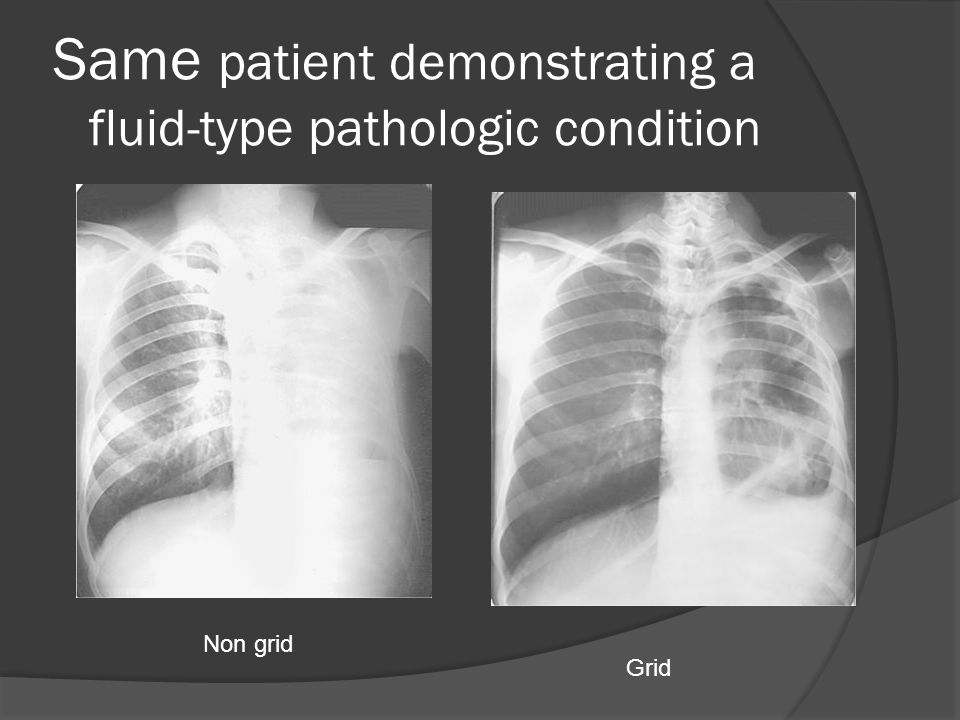 Same patient demonstrating a fluid-type pathologic condition