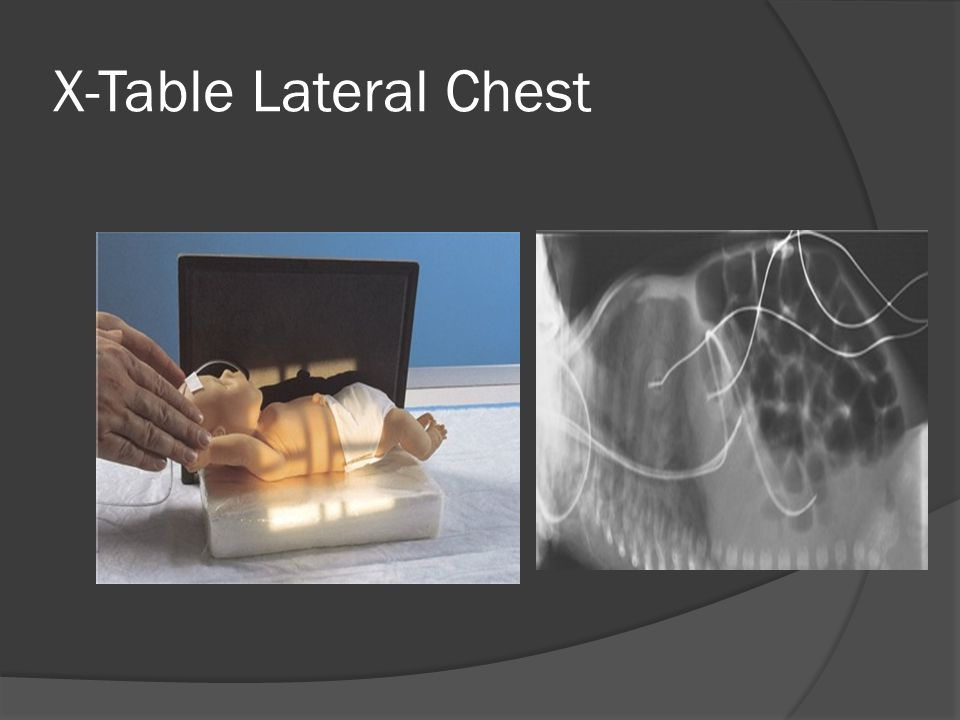 X-Table Lateral Chest