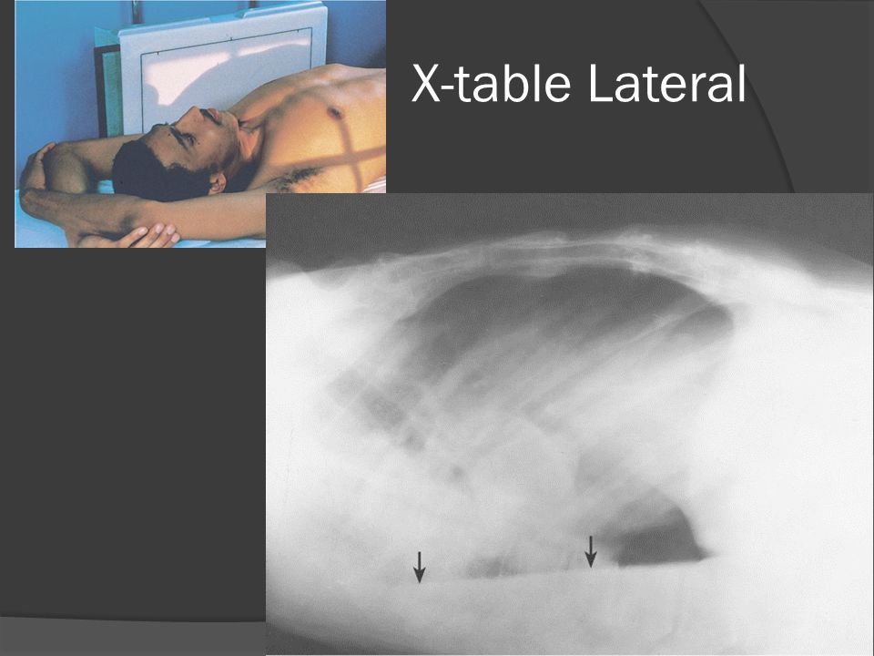X-table Lateral