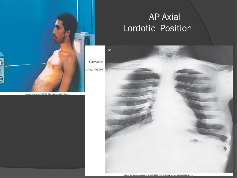 AP Axial Lordotic Position