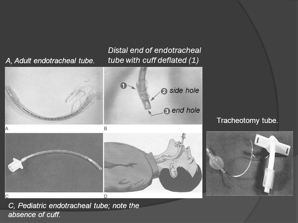 Distal end of endotracheal tube with cuff deflated (1)