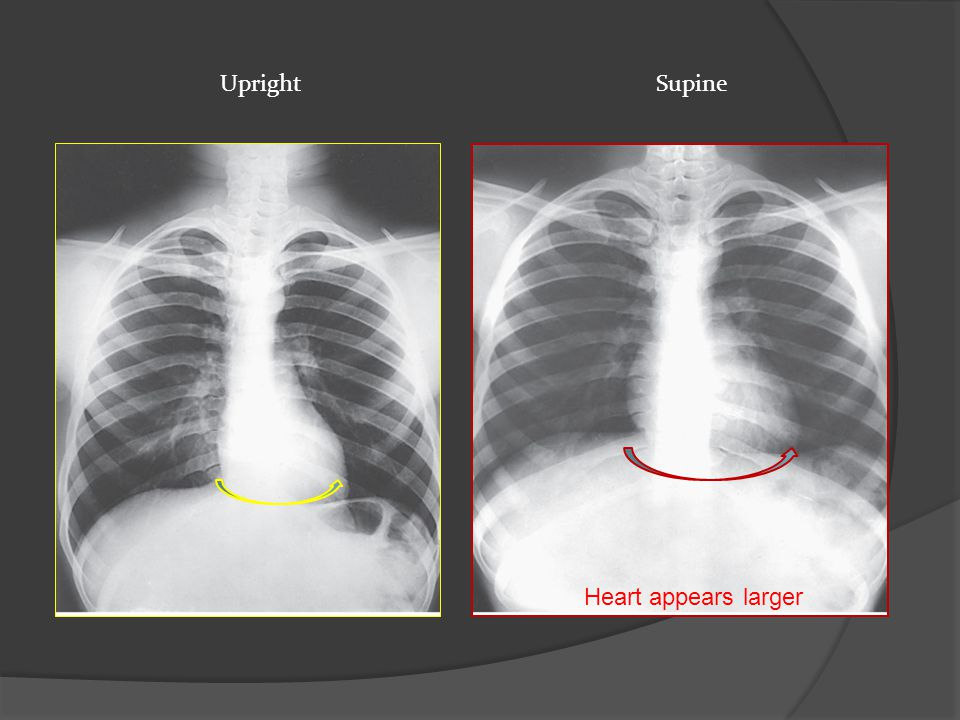 Upright Supine Heart appears larger