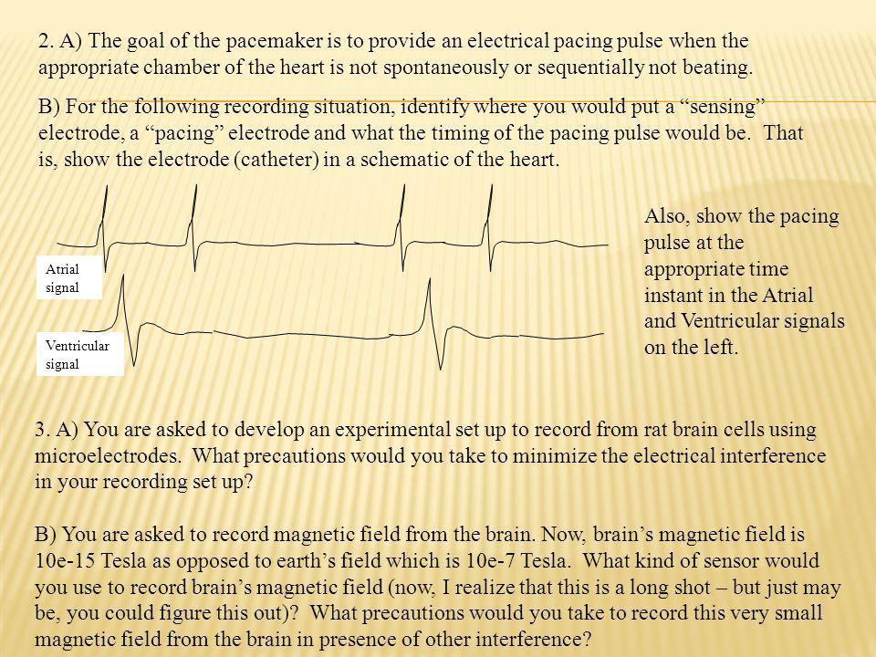 2. A) The goal of the pacemaker is to provide an electrical pacing pulse when the appropriate chamber of the heart is not spontaneously or sequentially not beating.