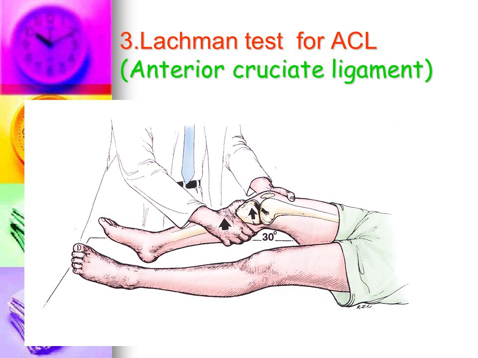 3.Lachman test for ACL (Anterior cruciate ligament)
