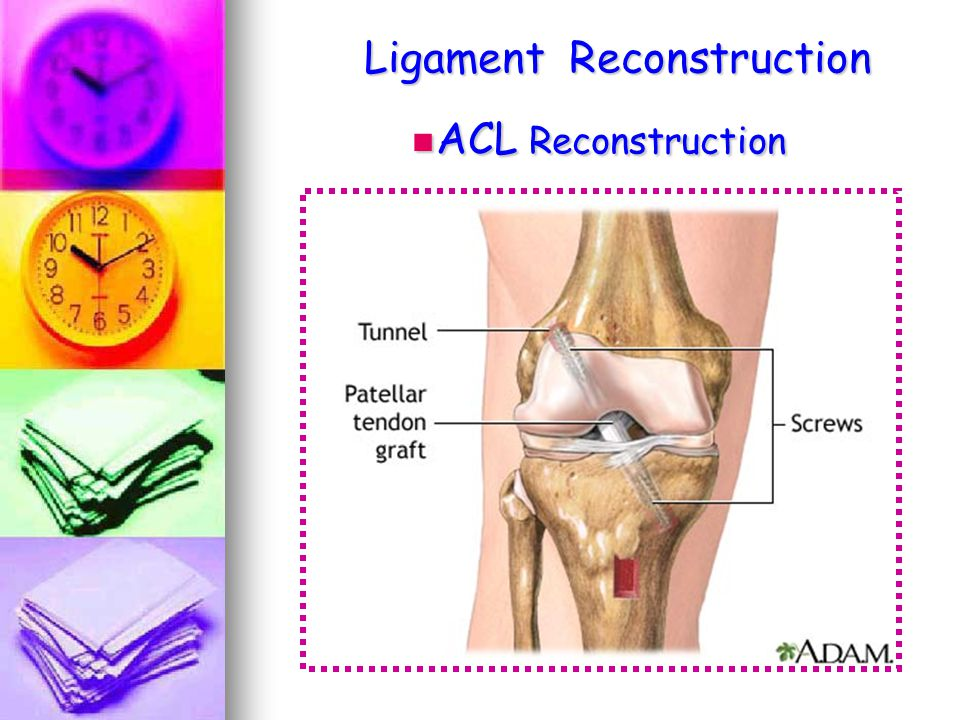 Ligament Reconstruction