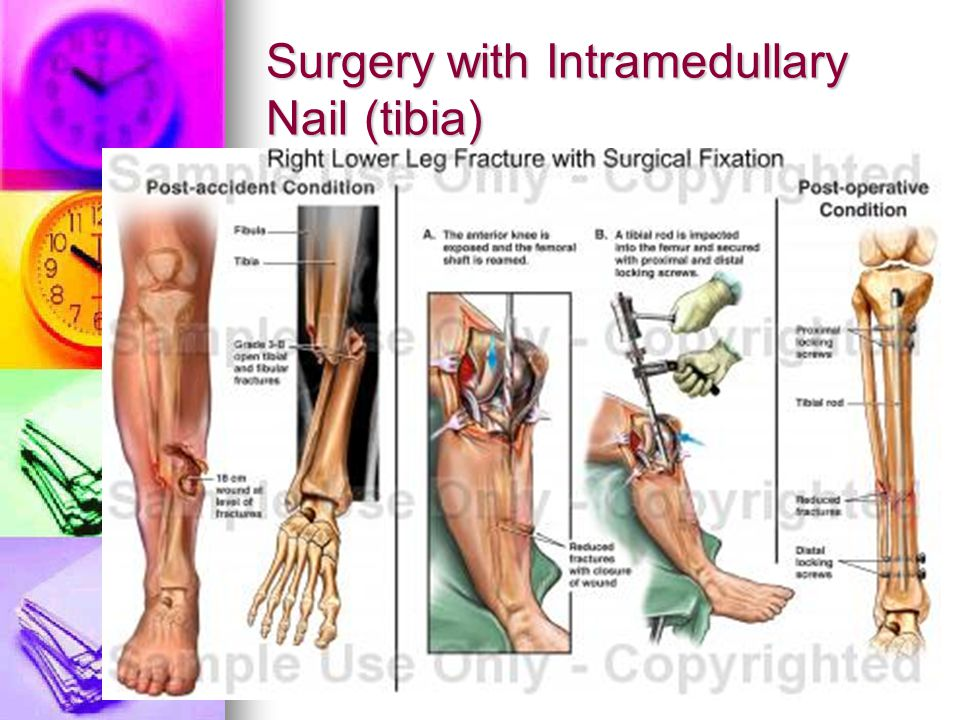 Surgery with Intramedullary Nail (tibia)