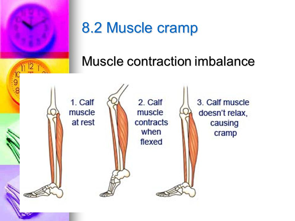 8.2 Muscle cramp Muscle contraction imbalance