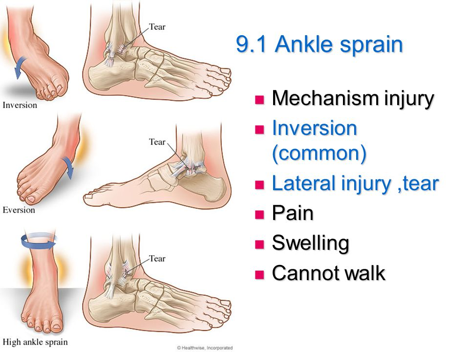 9.1 Ankle sprain Mechanism injury Inversion (common)