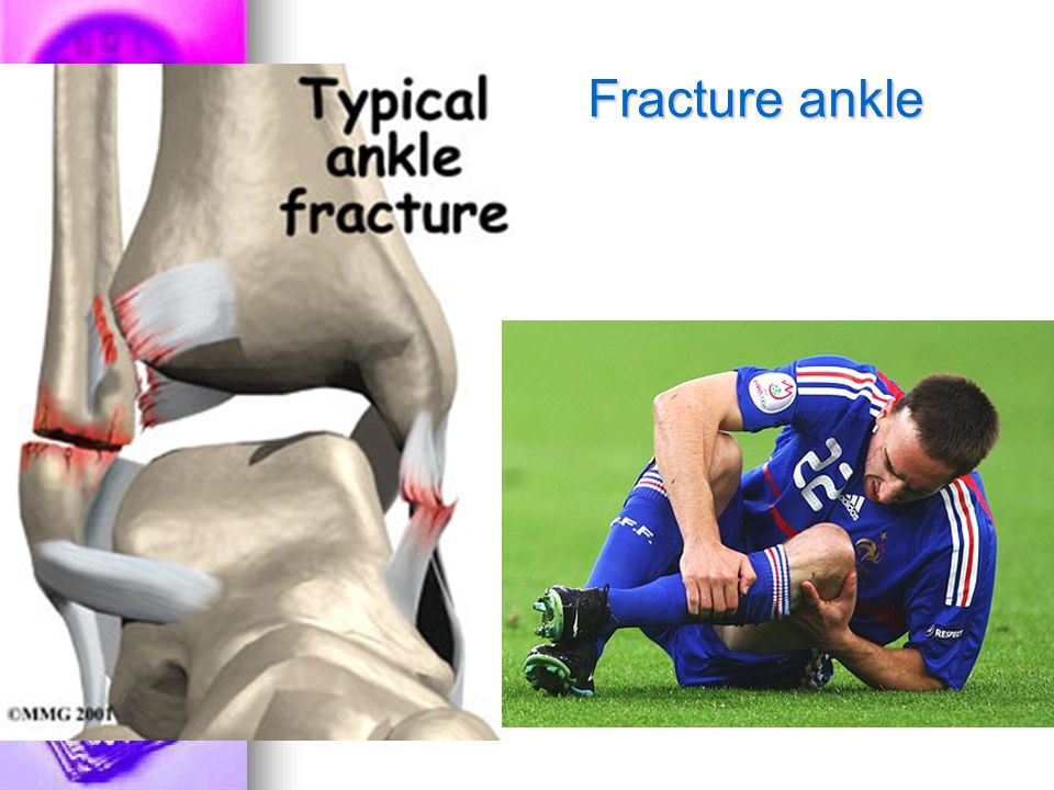 Fracture ankle