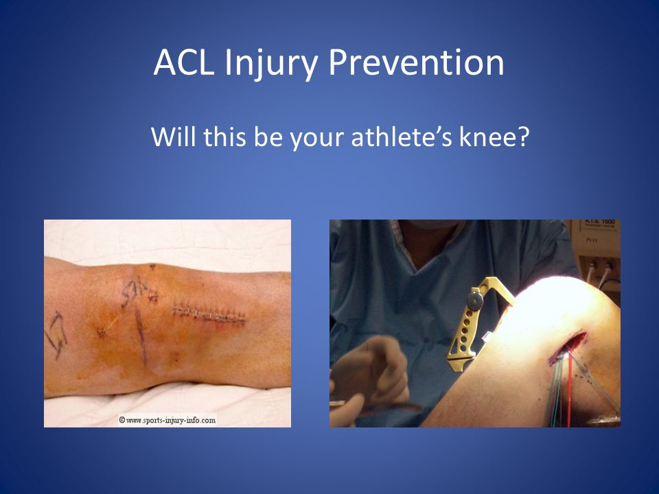 Will this be your athlete's knee