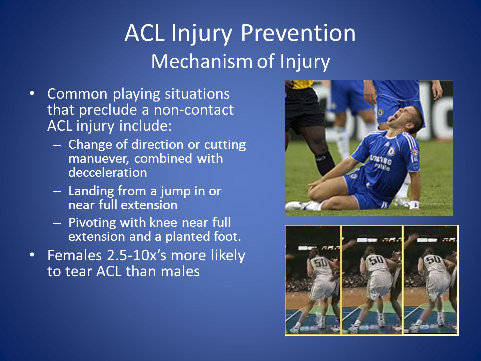 ACL Injury Prevention Mechanism of Injury