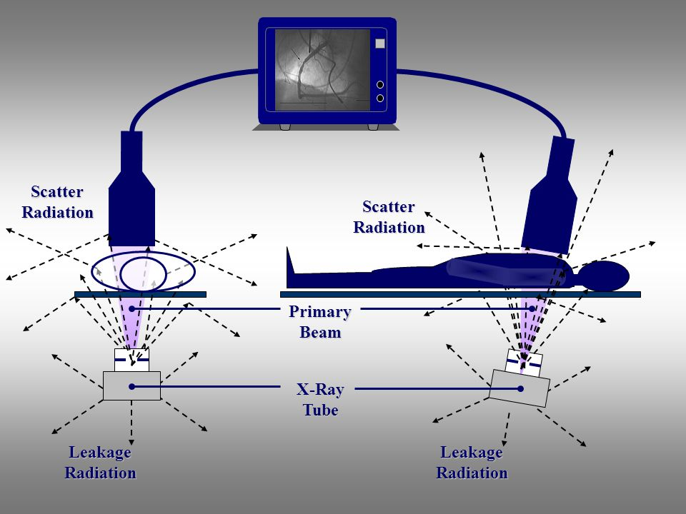 Primary Beam Scatter Radiation Leakage Radiation X-Ray Tube