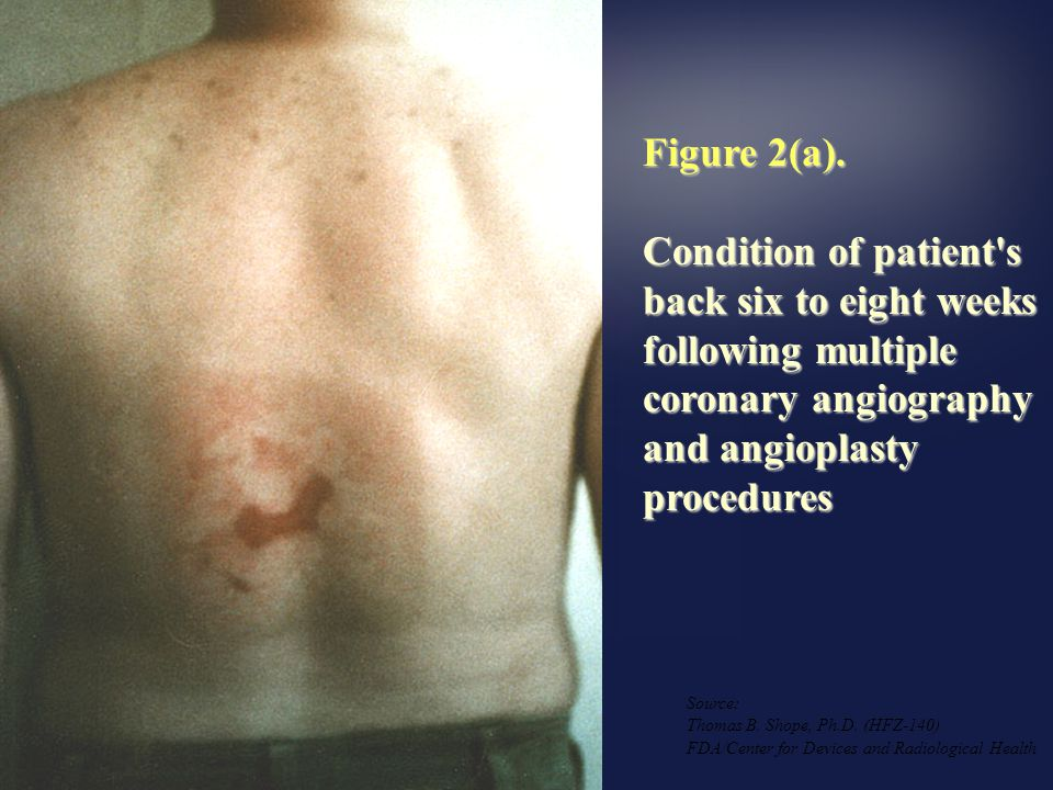 Figure 2(a). Condition of patient s back six to eight weeks following multiple coronary angiography and angioplasty procedures.