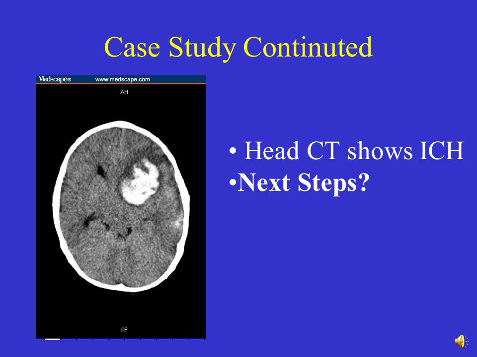Case Study Continuted Head CT shows ICH Next Steps