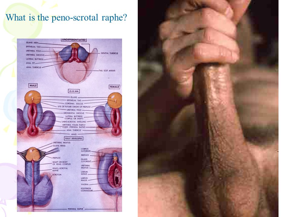 What is the peno-scrotal raphe